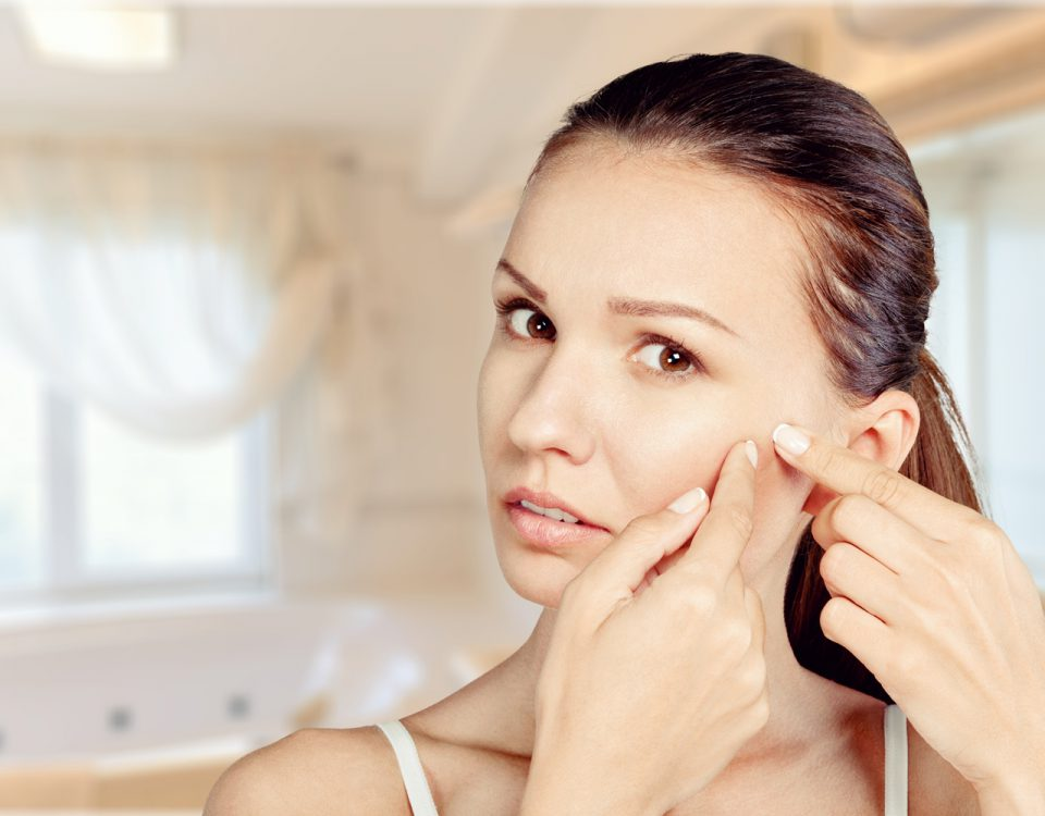 acne wat kun je er tegen doen